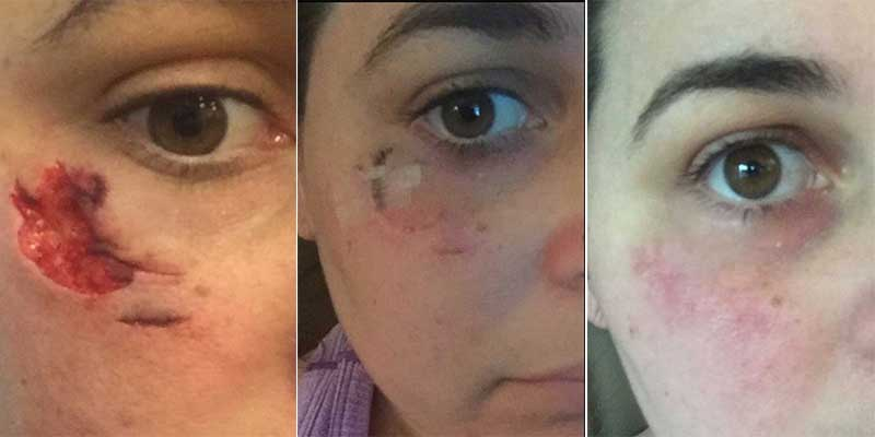 MARGARET: Facial scar healing