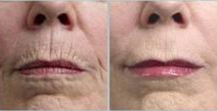 derma-roller--for-wrinkles-before-and-after.jpg