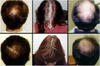derma-rolliner-hair-loss-before-and-after.jpg