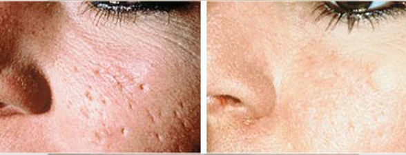 dermaroller-for-acne-before-and-after.jpg
