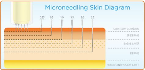 microneedling diagram