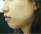 triamcinolone acetonide for acne scars
