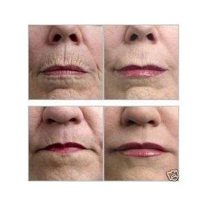 Wrinkles skin Micro Needle, Wrinkles Micro Needle ...
