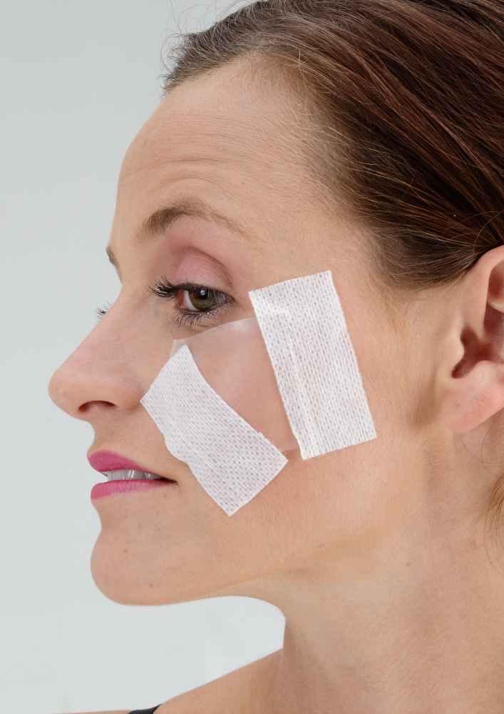 Small Acne Scar Silicone Sheets Treatment