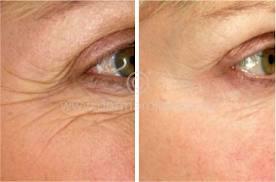 Wrinkles Skin Micro Needle Wrinkles Micro Needle