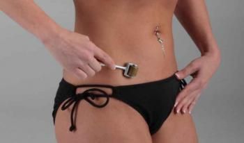 View: Derma Rollers 1080 - Titanium Alloy Needles